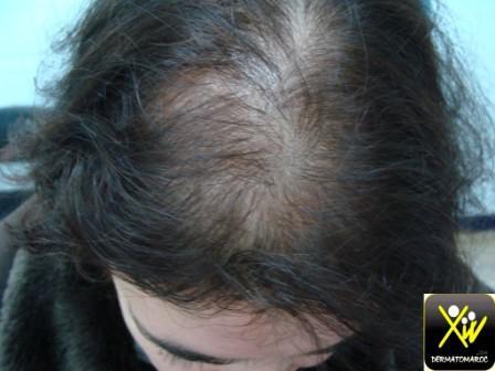 alopécie androgénétique féminine