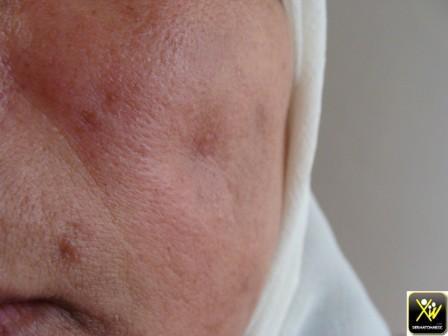 Atrophie cutanée popst lupus discoide.
