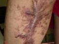 Angiokeratome recidive