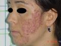 acné nodulaire