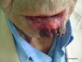 Carcinome epidermoide.