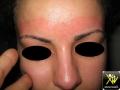 dermatite de contact allergique à la cire