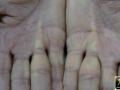Dupuytren, maladie de