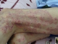 dermatite herpetiforme