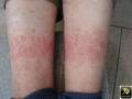 dermatite de contact allergique