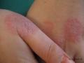 Eczema nummulaire.