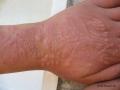 Eczema de contact allergique.
