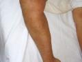 Herpes circiné eczematisé.