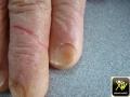 Koilonychie sur eczema des mains.