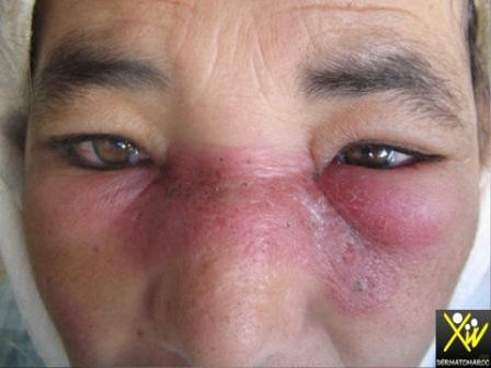 Lupus erythemateux disseminé.