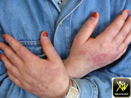 Lupus erythemateux aigu disseminé.