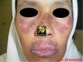 Lupus erythemateux chronique.