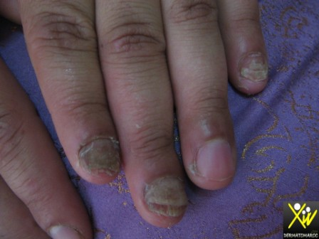 Psoriasis des ongles.