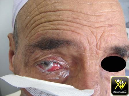 Pemphigoide cicatricielle.