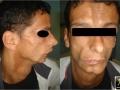 Syndrome de Romberg, Sclérodermie en coup de sabre.