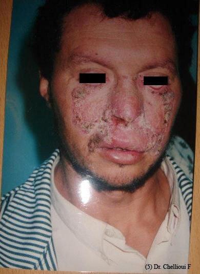 Tuberculose cutanée, lupus vorax.