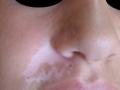 Vitiligo segmentaire.