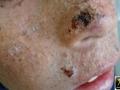 Xeroderma pigmentosum.