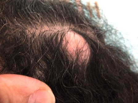 Comme traiter les pellicules des cheveu