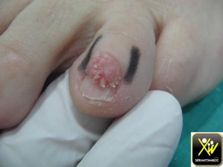 tumeurs de l ongle photos