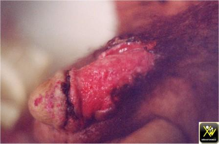Photo des maladies péniennes
