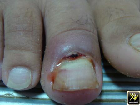Retronychie ap fracture de jambe et oedeme.  300414 (2) [1600x1200]
