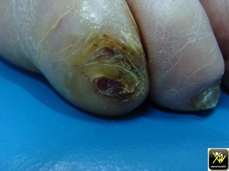 ongles   ocm cf histo ap exerese biopsie car doute tum 300414 (1) [1600x1200]