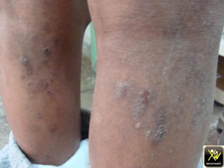 Dermatite atopique grand enf Pigmentation post grattage et inflammation 300412 (1) [1600x1200]