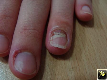 Les peaux autour des ongles le traitement