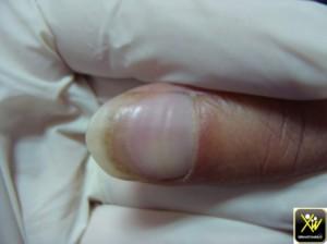 Couturier sillon transversaux ongles 240614 (1) (Copier)