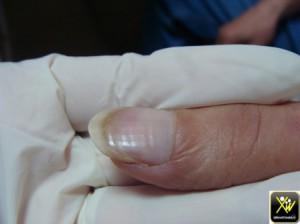Couturier sillon transversaux ongles 240614 (2) (Copier)