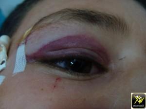 Ecchymose post trauma violence conjugale 240614  (Copier)