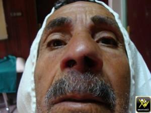 Lepre et trauma ungueal non ressenti onychomadese 240614 (2) (Copier)