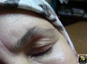 Chute cheveux et queu sourcils syphilis serologique 260115  (2) - Copie (Copier)