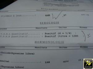 Chute cheveux et queu sourcils syphilis serologique 260115  (3) (Copier)