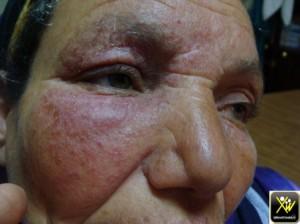 Erysipele debutant sur eczema visage 300414 (1) (Copier)