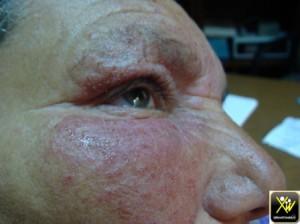 Erysipele debutant sur eczema visage 300414 (2) (Copier)