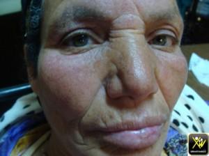Erysipele debutant sur eczema visage evolution 7 j 300414 (1) (Copier)
