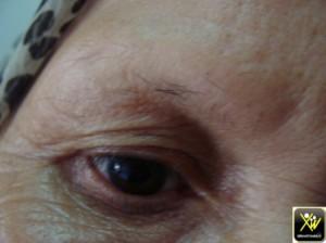Pertes sourcils par frottement 011114  (1) (Copier)