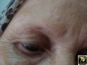 Pertes sourcils par frottement 011114  (2) (Copier)