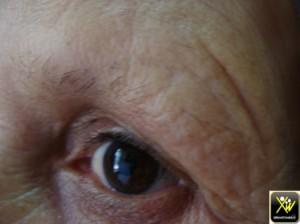 Pertes sourcils par frottement 011114  (3) (Copier)