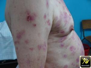 Dermatose bulleuse et cicatr gr milium 180515  (1) (Copier)