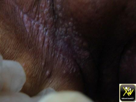 Kc colon opere et chimio il y a deux ans. Now douleur plis aine et papules. Meta HC HSV.   240614 (3) (Copier)