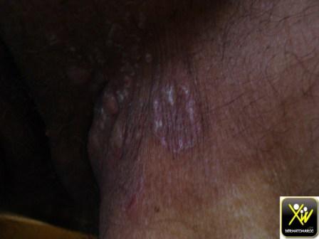 Kc colon opere et chimio il y a deux ans. Now douleur plis aine et papules. Meta HC HSV.   240614 (4) (Copier)