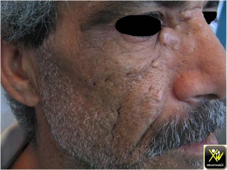 acne kys (Copier)