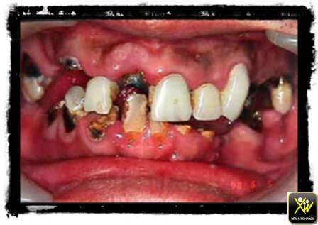 dents (Copier)