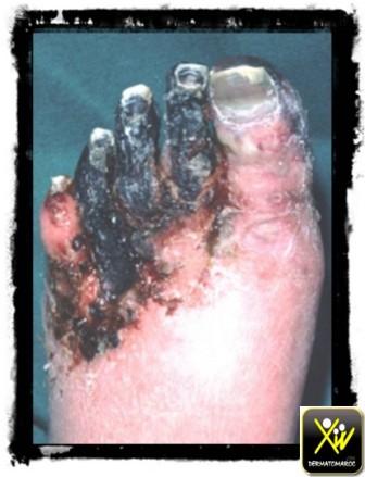 gangrène tabac et vaisseaux sanguins