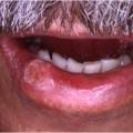 Tabac et ulcération de la lèvre