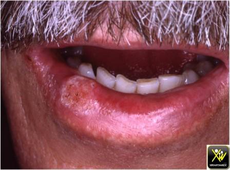 Tabac et ulcération de la lèvre.carcinome epidermoide.