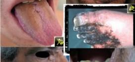 Tabac et peau